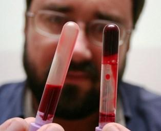 Makanan yang Baik dan Buruk Untuk Pengidap Penyakit Darah Kental